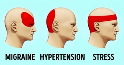 Отървете се от главоболието само за 5 минути без никакви хапчета