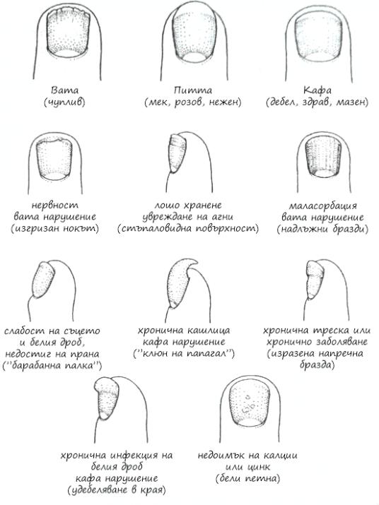 Диагностика по ноктите
